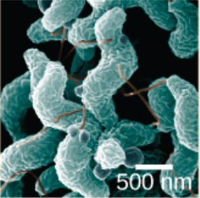 his scanning electron microscope image shows the characteristic spiral, or corkscrew, shape of C. jejuni cells and related structures.