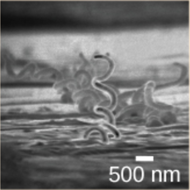 Micrograph shows corkscrew-shaped Trepanema pallidum, about 1 micron across.