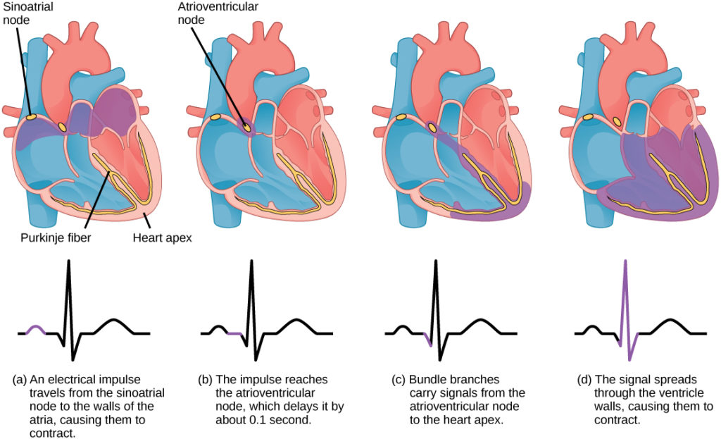 The sinoatrial node is located at the top of the right atrium, and the atrioventricular node is located between the right atrium and right ventricle. The heart beat begins with an electrical impulse at the sinoatrial node, which spreads throughout the walls of the atria, resulting in a bump in the ECG reading. The signal then coalesces at the atrioventricular node, causing the ECG reading to flat-line briefly. Next, the signal passes from the atrioventricular node to the Purkinje fibers, which travel from the atriovenricular node and down the middle of the heart, between the two ventricles, then ups the sides of the ventricles. As the signal passes down the Purkinje fibers the ECG reading falls. The signal then spreads throughout the ventricle walls, and the ventricles contract, resulting in a sharp spike in the ECG. The spike is followed by a flat-line, longer than the first then a bump.