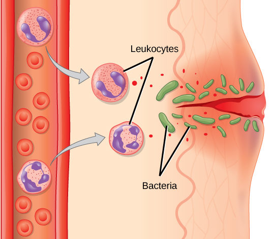 Illustration shows a capillary near the surface of skin that has a cut in it. Bacteria have penetrated the skin around the cut. In response, mass cells in the lower part of the skin tissue release histamines, and dendritic cells release cytokines. The histamines cause the capillary to become permeable. Neutrophils and monocytes exit the capillary into the damaged skin. Both the neutrophil and macrophage release cytokines and consumes bacteria by phagocytosis.