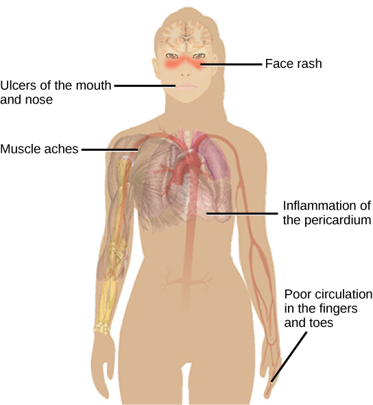 Illustration shows the symptoms of lupus, which include a face rash, ulcers in the mouth and nose, inflammation of the pericardium and poor circulation in the fingers and toes.