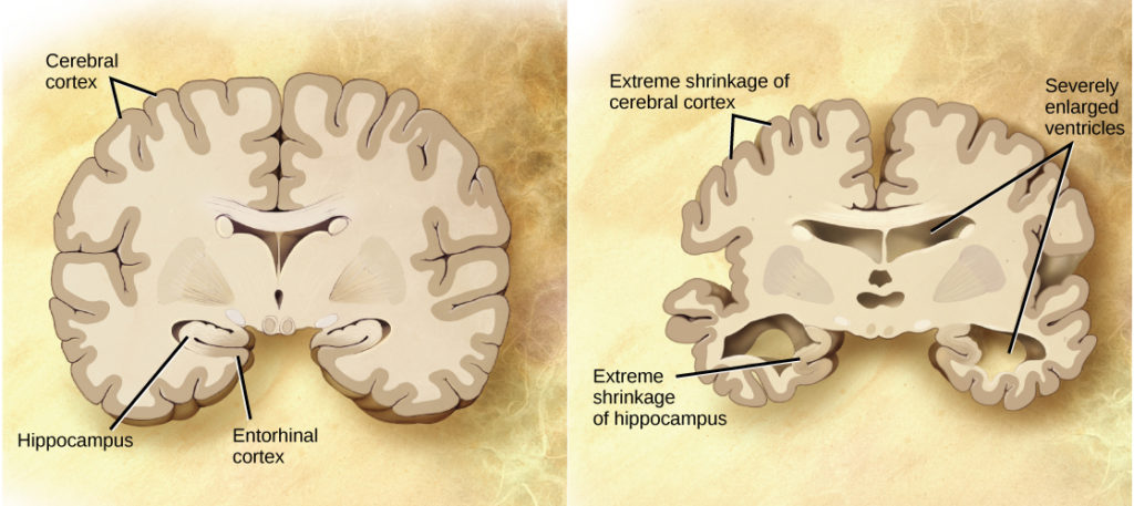 A cross section of a normal brain and the brain of an Alzheimer's patient are compared. In the Alzheimer's brain, the cerebral cortex is greatly shrunken in size as is the hippocampus. Ventricles, holes in the center and bottom right and left parts of the brain, are also enlarged.
