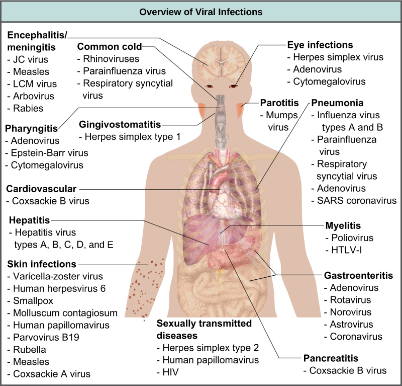 The illustration shows an overview of human viral diseases. Viruses that cause encephalitis or meningitis, or inflammation of the brain and surrounding tissues, include measles, arbovirus, rabies, JC virus, and LCM virus. The common cold is caused by rhinovirus, parainfluenza virus, and respiratory syncytial virus. Eye infections are caused by herpesvirus, adenovirus, and cytomegalovirus. Pharyngitis, or inflammation of the pharynx, is caused by adenovirus, Epstein-Barr virus, and cytomegalovirus. Parotitis, or inflammation of the parotid glands, is caused by mumps virus. Gingivostomatitis, or inflammation of the oral mucosa, is caused by herpes simplex type I virus. Pneumonia is caused by influenza virus types A and B, parainfluenza virus, respiratory syncytial virus, adenovirus, and SARS coronavirus. Cardiovascular problems are caused by coxsackie B virus. Hepatitis is caused by hepatitis virus types A, B, C, D, and E. Myelitis is caused by poliovirus and HLTV-1. Skin infections are caused by varicella-zoster virus, human herpesvirus 6, smallpox, molluscum contagiosum, human papillomavirus, parvovirus B19, rubella, measles, and coxsackie A virus. Gastroenteritis, or digestive disease, is caused by adenovirus, rotavirus, norovirus, astrovirus, and coronavirus. Sexually transmitted diseases are caused by herpes simplex type 2, human papillomavirus, and HIV. Pancreatitis B is caused by coxsackie B virus.