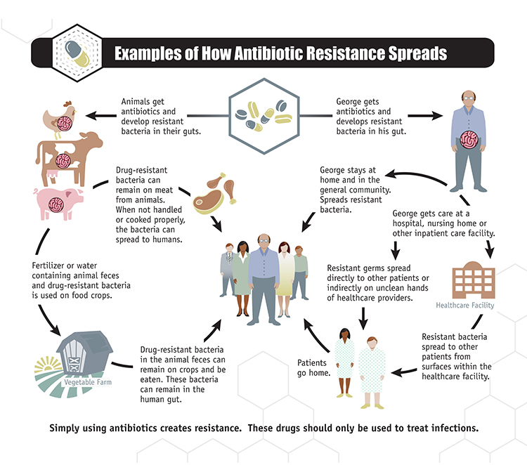 An infographic depicting how antibiotic resistance spreads. The graphic follows two distinct paths: Animals get antibiotics and develop drug-resistant bacteria in their guts or humans get antibiotics and develop drug-resistant bacteria in their guts. When animals develop drug-resistant bacteria the bacteria can spread in two ways: One drug-resistant bacteria can remain on meat from animals. When not handled or cooked properly, the bacteria can spread to humans. Two: fertilizer or water containing animal feces and drug-resistant bacteria is used on food crops. Drug-resistant bacteria in the animal feces can remain on crops and be eaten. These bacteria can remain in the human gut. There are two examples given of how resistance spreads when humans develop resistant bacteria. One: George gets care at a hospital, nursing home, or other inpatient care facility. Resistant germs can spread directly to other patients or indirectly on unclean hands of healthcare providers. Resistant bacteria can also spread to other patients from surfaces within the healthcare facility. The patients go home and the resistant bacteria spread further. Two: George stays at home and in the general community. He spreads the resistant bacteria that has developed in his gut.
