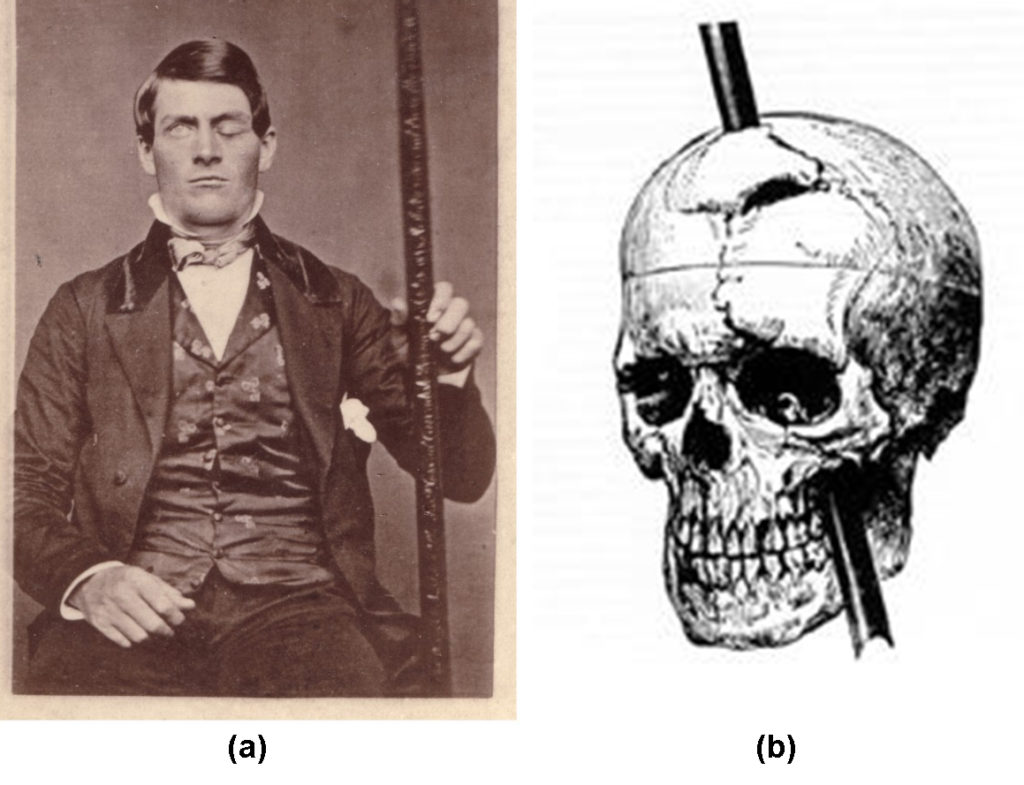 This photo on the left shows Phineas Gage holding the metal spike that impaled his prefrontal cortex. The image on the right shows a drawing of the skull with the metal spike inserted like it would have been when he was injured.