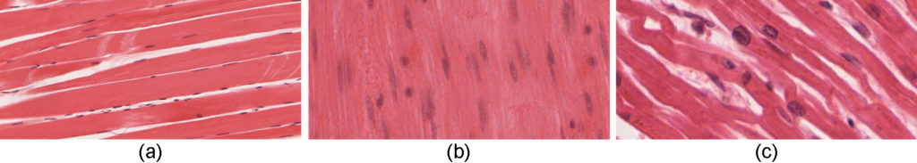 This figure show the micrographs of skeletal muscle, smooth muscle, and cardiac muscle cells.