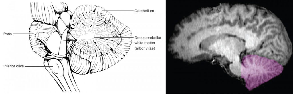 This figure shows the location of the cerebellum in the brain. In the top panel, a lateral view labels the location of the cerebellum and the deep cerebellar white matter. In the bottom panel, a photograph of a brain, with the cerebellum in pink is shown.