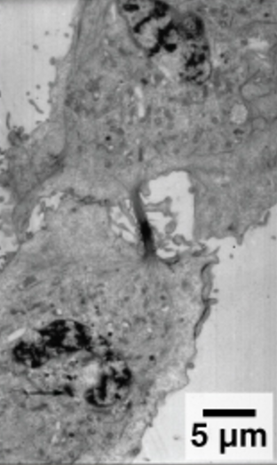 A micrograph of a plant cell undergoing cytokinesis. The two daughter cells can clearly be seen dividing.