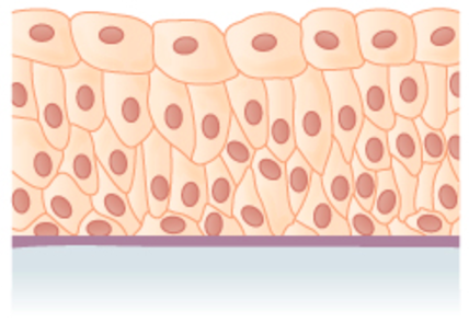many layers of irregularly shaped cells with diverse sizes