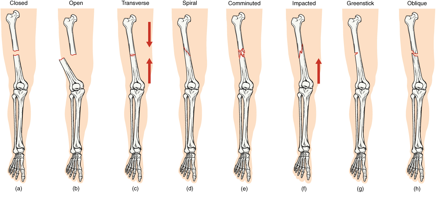 Fractures Bone Repair Anatomy And Physiology I