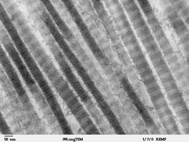 This is a black and white x-ray of collagen fibers, the strongest and most abundant of all the connective tissue fibers.