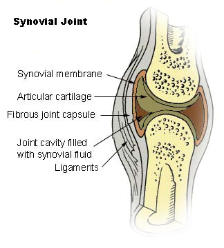 This illustration is a cutaway image of a synovial joint showing the location of the synovial membrane. The synovial membrane is soft tissue surrounding the joint cavity, which is filled with synovial fluid. Ligaments and the fibrous joint capsule surround the outside of the synovial membrane. The articular cartilage is inside the synovial membrane and cushions the bones at the joint.