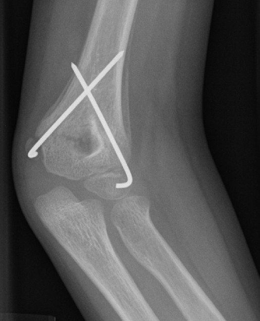 This is a radiographic image (x-ray) of a child's healing supracondylar humeral fracture that has been treated with closed reduction and pinning. This image, taken three weeks post injury, demonstrates the benign periosteal reaction of normal healing bone.