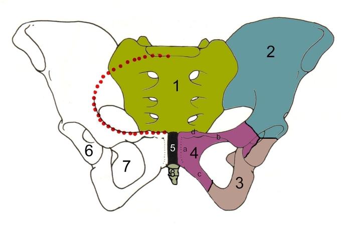 This is a color illustration of the body of a pubic bone. It identifies the sacrum, ilium, ischium, pubis body, superior ramus, inferior ramus, pubic symphisis, acetabulum, obturator foramen, coccyx, and linea terminalis.