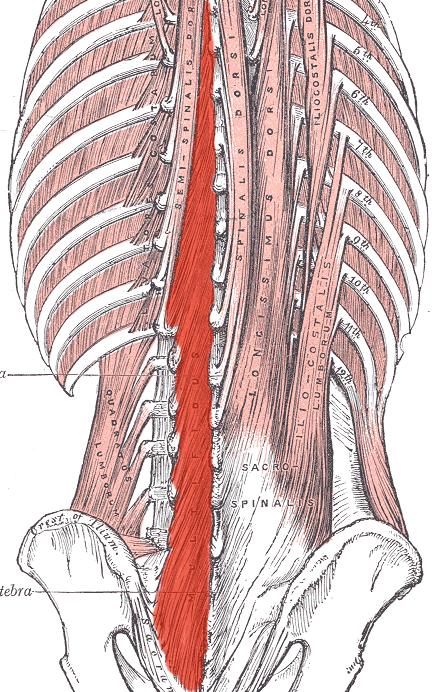 This diagram depicts the multifidus in relation to the sacrum, sacrospinalis, semispinalis, and spinalis dorsi.