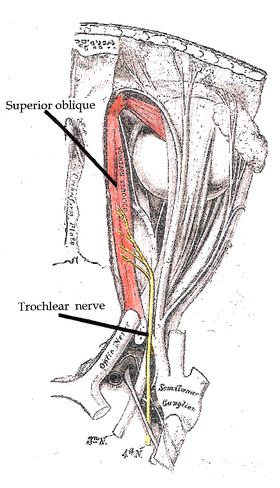 This is a drawing of the trocheal nerve that shows where it innervates the superior oblique muscle.