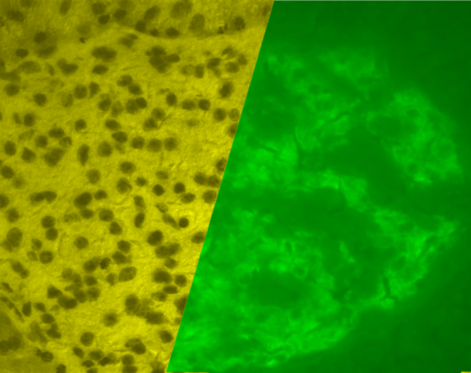 This is a microscope photograph of a porcine islet of Langerhans. On the left is a brightfield image created using hematoxylin stain; nuclei are dark circles and the acinar pancreatic tissue is darker than the islet tissue. The right image is the same section stained by immunofluorescence against insulin, indicating beta cells.