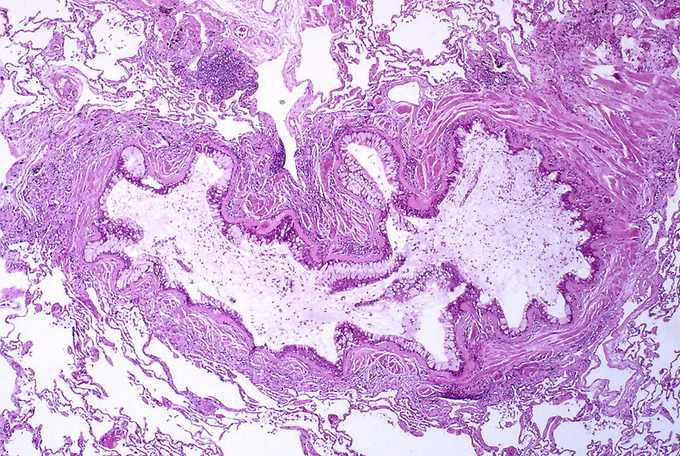 This is a cross-section of tissue affected by asthma. It shows obstruction of the lumen of the bronchiole by mucoid exudate, goblet cell metaplasia, epithelial basement membrane thickening, and severe inflammation of bronchiole.
