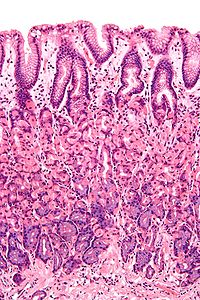 This is a micrograph that shows a cross section of the stomach wall, in the body portion of the stomach.