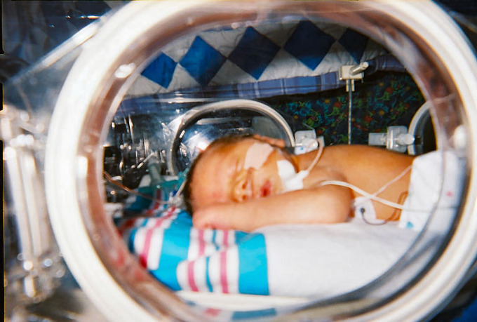 This is a photograph of an infant in an incubator. Infants, especially preterm infants, have trouble regulating their body temperature. Placement in an incubator allows them to adjust without draining their energy stores.