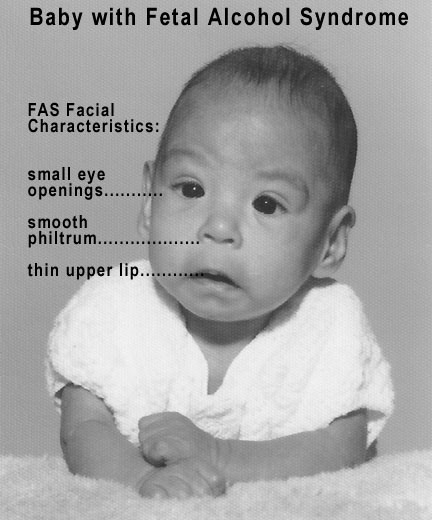 This is a photo of a baby with fetal alcohol syndrome Alcohol is a teratogen. When consumed in pregnancy, it can result in mothers giving birth to children with fetal alcohol syndrome. The facial characteristics highlighted in the photograph are a small eye opening, a smooth philtrum, and a thin upper lip.