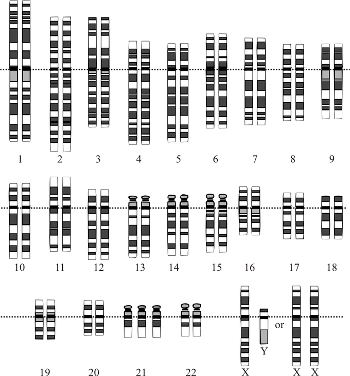This is a reproduction of a prenatal diagnosis tool that profiles a person's chromosomes, the karyotype. This karyotype indicates that the fetus has Down syndrome as it has three of chromosome 21 instead of two.