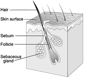 This image shows the sebaceous gland, hair follicle, sebum, skin surface, and hair. The sebaceous gland is deep underneath the skin's surface, adjacent to the hair follicle. The sebum clogs the sebaceous gland and hair follicle, pushing up to the skin surface.
