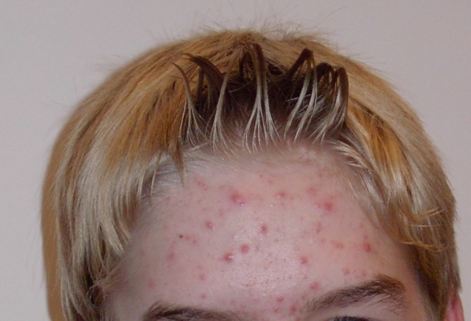 This image shows a 14-year-old male with with acne on his forehead. Many different red pimples, of varying size and severity, dot this person's forehead.