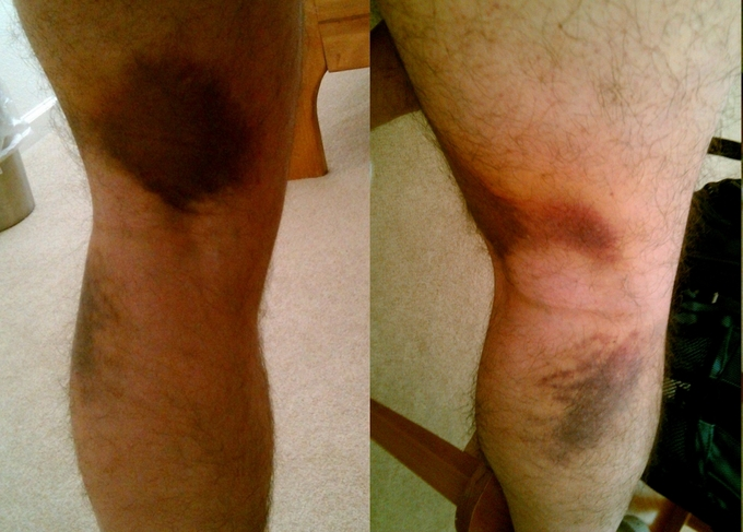 This image shows a man's leg muscle strain after 4 days.