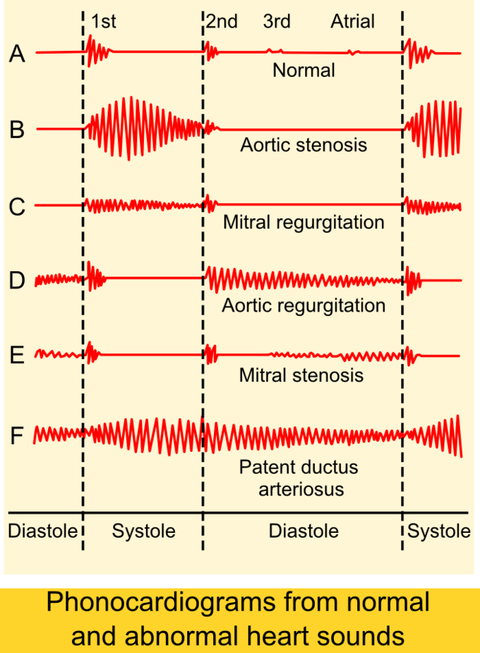 This chart demonstrates the normal and abnormal sounds that heart defects can make.