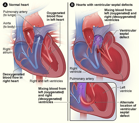 heart and physiological disorders assignment The primer on the autonomic nervous system  the virtue in using this maneuver is that the changes in heart rate  has prevented the unequivocal assignment of the.
