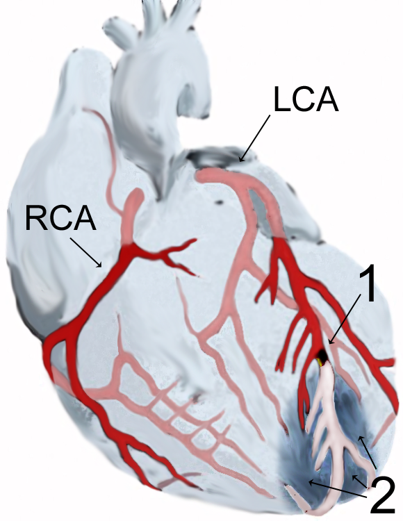 In this image, you can see a blockage of the left coronary artery, which is impeding blood flow.