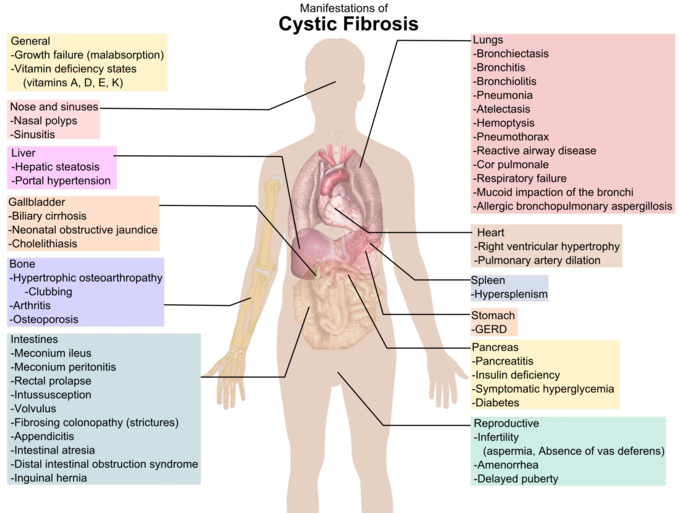 This is a diagram showing manifestations of CF in different parts of the body. For example, manifestation in the stomach is GERD.