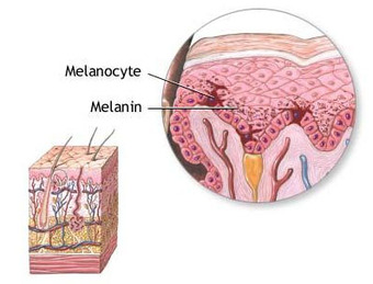 This is an image of a cross-section of skin that shows melanin in melanocytes.