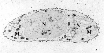 This is a microscopic photo of a slide of chondrocyte, stained for calcium, showing its nucleus (labeled N) and mitochondria (labeled M).