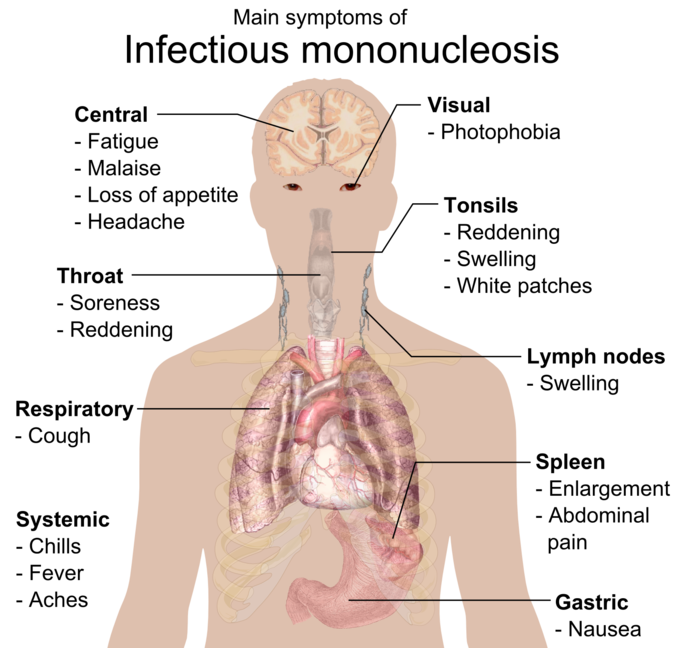 This image contains the main symptoms of mononucleosis according to parts of the body. For example, soreness and redness are the main throat symptoms.