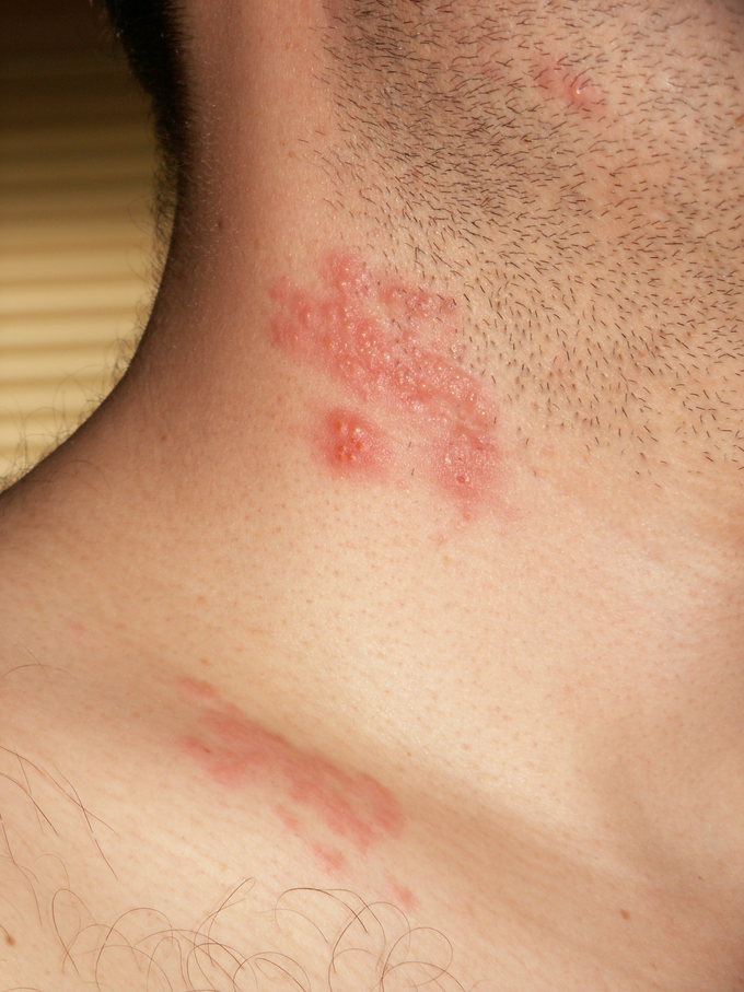 Microbial Diseases of the Skin | Boundless Microbiology
