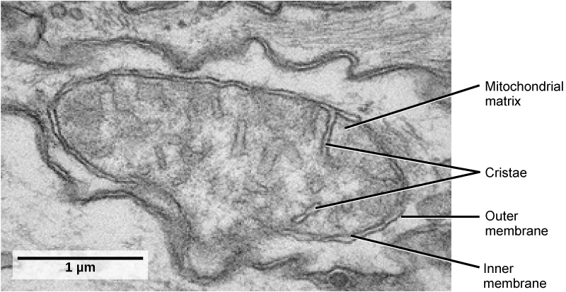 This transmission electron micrograph of a mitochondrion shows an oval, outer membrane and an inner membrane with many folds called cristae. Inside of the inner membrane is a space called the mitochondrial matrix.
