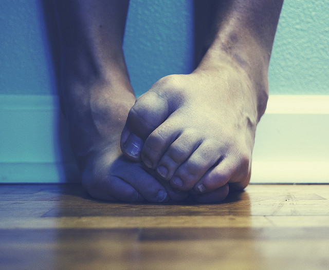 I picture of a person's feet with clenched toes.