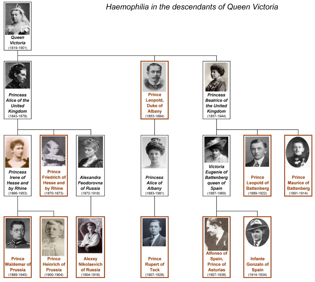 A family tree charting haemophilia in the descendants of Queen Victoria. Queen Victoria had three children: Princess Alice of the UK, Prince Leopold Duke of Albany, and Princess Beatrice of the UK. Of Queen Victoria's children, only Prince Leopold had haemophilia. Princess Alice had three children: Princess Irene, Prince Friedrich, and Alexandra Feodorovna. Of Princess Alice's children, only Prince Friedrich had haemophilia. Princess Irene had two sons, Prince Waldemar and Prince Heinrich, both of whom had haemophilia. Alexandra had one son, Alexy Nikolaevich, who had haemophilia. Queen Victoria's son Prince Leopold had one daughter, Princess Alice, who did not have haemophilia. Princess Alice had one son, Prince Rupert, who had haemophilia. Queen Victoria's daughter Princess Beatrice had three children: Victoria Eugenie, who did not have haemophilia, and two sons, prince Leopold of Battenberg and Prince Maurice of Battenberg, who both had haemophilia. Beatrice's daughter Victoria Eugenie had two sons, Alfonso of Spain and Infante Gonzalo of Spain, both of whom haemophilia.