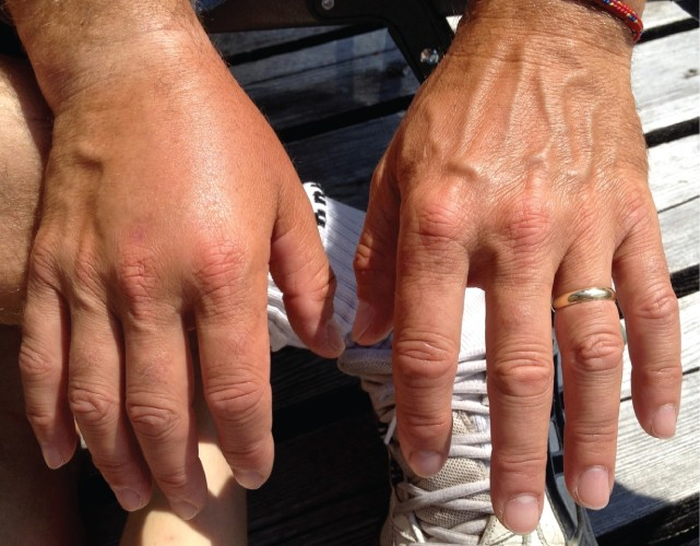 This photo shows the dorsal surfaces of a person's right and left hands. The left hand is normal, with the several blood vessels visible under the skin. However, the top of the right hand is swollen and no blood vessels are visible.
