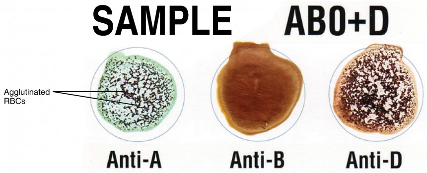 Blood Typing | Anatomy and Physiology
