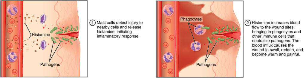 The top panel of this figure shows the mast cells detecting an injury and initiating an inflammatory response. The bottom panel shows the increase in blood flow in response to histamine, which brings in phagocytes and other immune cells that neutralize pathogens. The blood influx causes the wound to swell, redden, and become warm and painful.