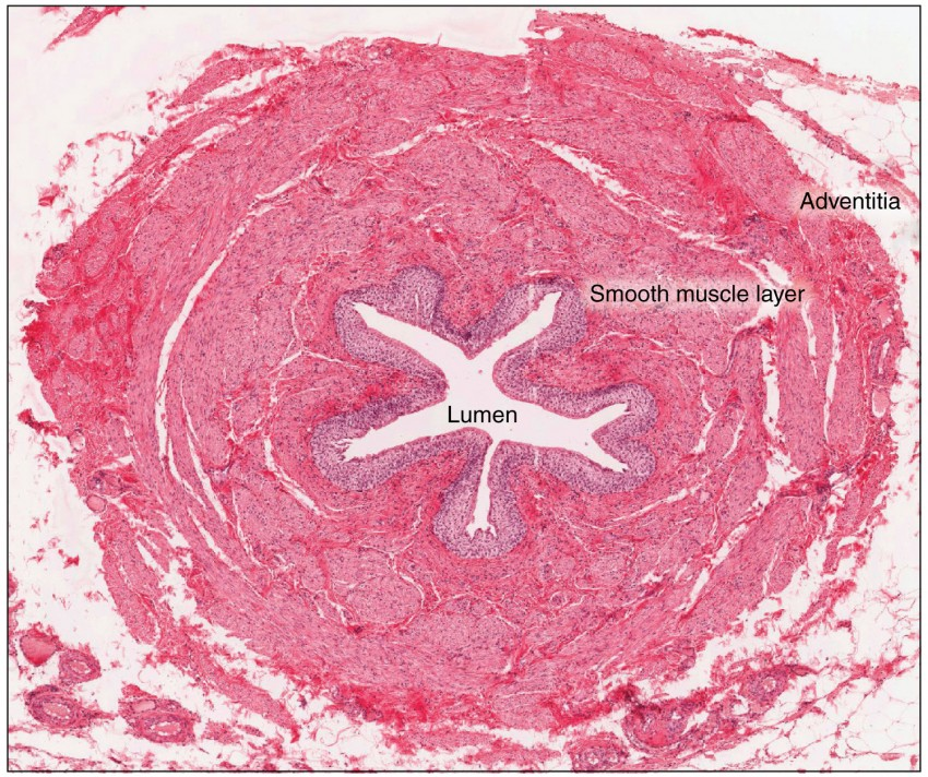 A micrograph shows the lumen of the ureter.
