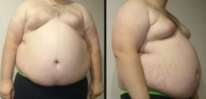 A front and profile view of an over weight man is shown
