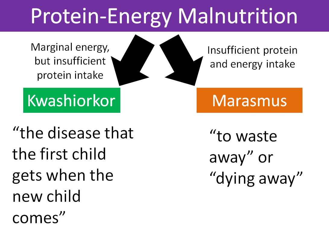 Protein Energy Malnutrition Images Energy Etfs