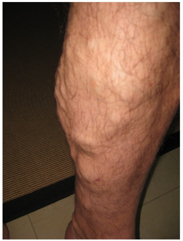 This photo shows a person's leg.