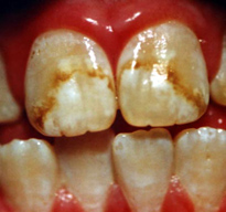 Teeth with discoloration due to Bellingham fluorosis