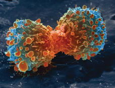 File:Lung cancer cell during cell division-NIH.jpg