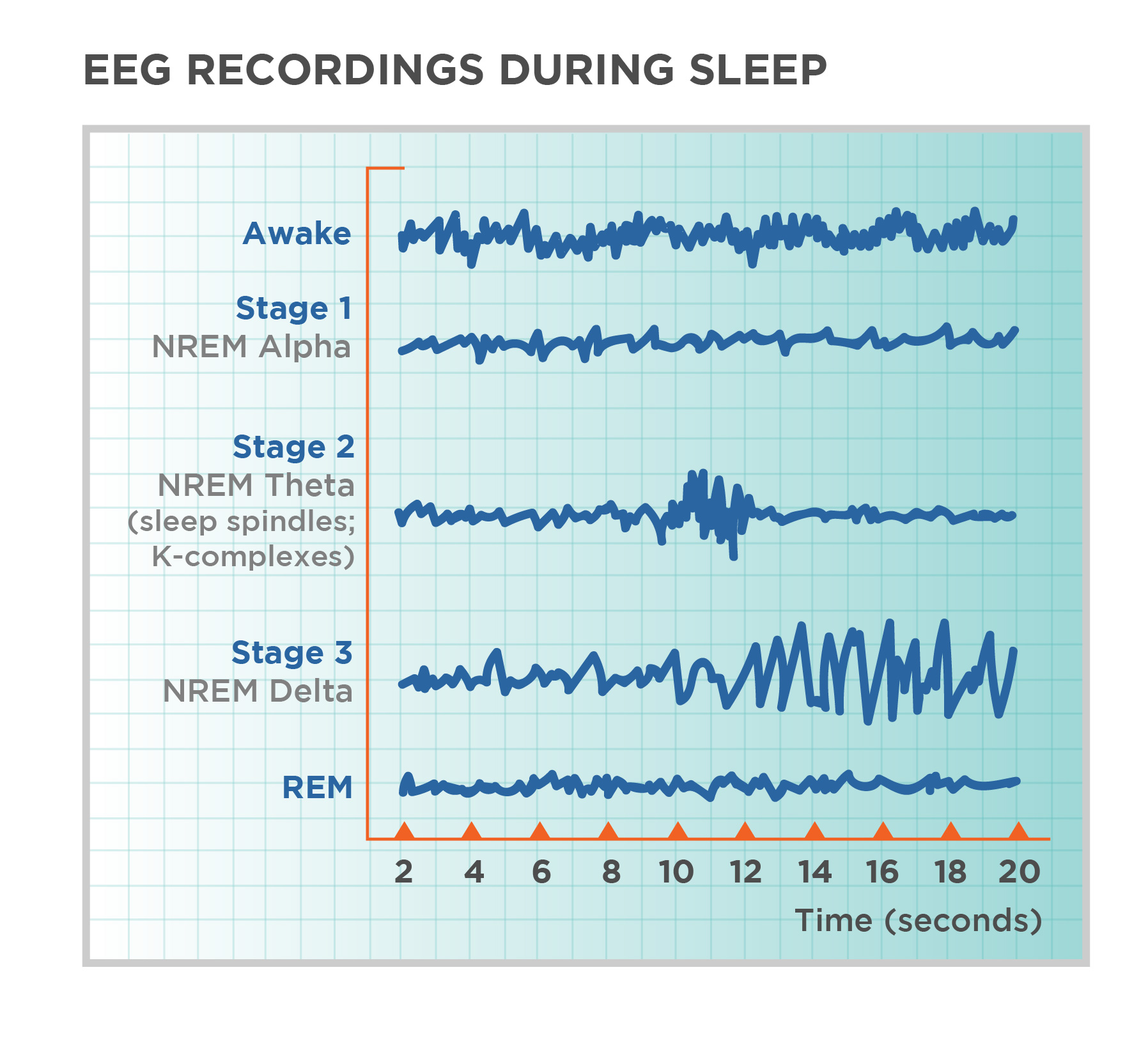 "A graph has a y-axis labeled ""EEG"" and an x-axis labeled ""time (seconds.) Plotted along the y-axis and moving upward are the stages of sleep. First is REM, followed by Stage 3 and 4 NREM Delta, Stage 2 NREM Theta (sleep spindles; K-complexes), Stage 1 NREM Alpha, and Awake. Charted on the x axis is Time in seconds from 2–20 in 2 second intervals. Each sleep stage has associated wavelengths of varying amplitude and frequency. Relative to the others, ""awake"" has a very close wavelength and a medium amplitude. Stage 1 is characterized by a generally uniform wavelength and a relatively low amplitude which doubles and quickly reverts to normal every 2 seconds. Stage 2 is comprised of a similar wavelength as stage 1. It introduces the K-complex from seconds 10 through 12 which is a short burst of doubled or tripled amplitude and decreased wavelength. Stages 3 shows a more uniform wave with gradually increasing amplitude. Finally, REM sleep looks much like stage 2 without the K-complex."